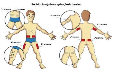 Rodízio planejado na aplicação da insulina